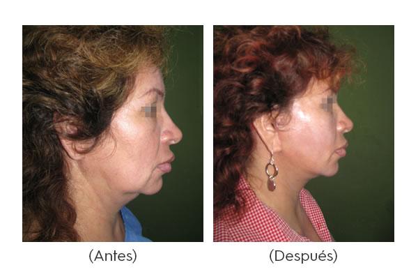 rejuvenecimiento-facial-2