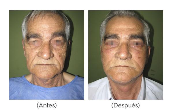 rejuvenecimiento-facial-3