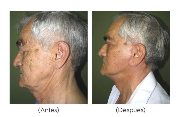rejuvenecimiento-facial-4